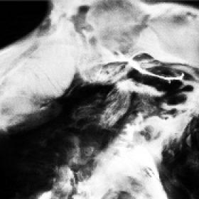 SAFFRONKEIRA: A New Life [2-CD]